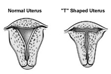 T shaped Uterus as a result of DES use